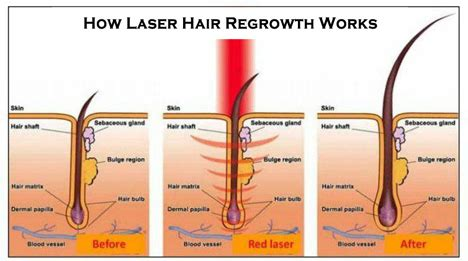 low level laser light therapy spectrum salon and spa laser hair growth