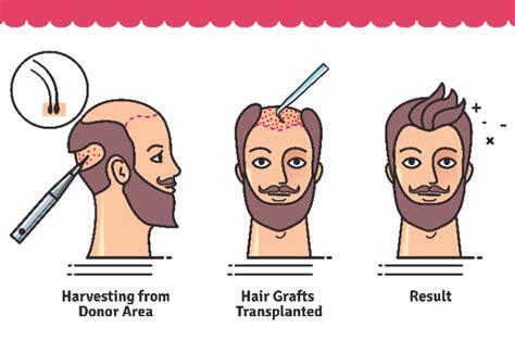 transplant hair second round draft transplant hair second round draft is hair transplant