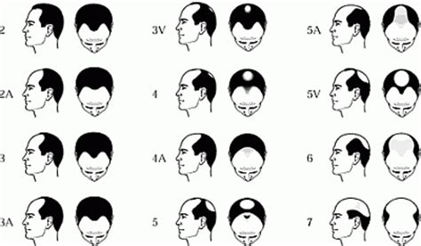 male pattern of hair loss hudson s guide hair loss information and treatment options