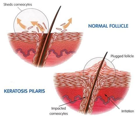How Do Detox Bumps Last by Keratosis Pilaris Pictures Search Keratosis