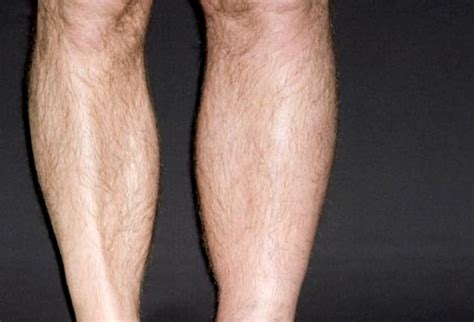 signs of blood clot in leg pictures oasis fashion