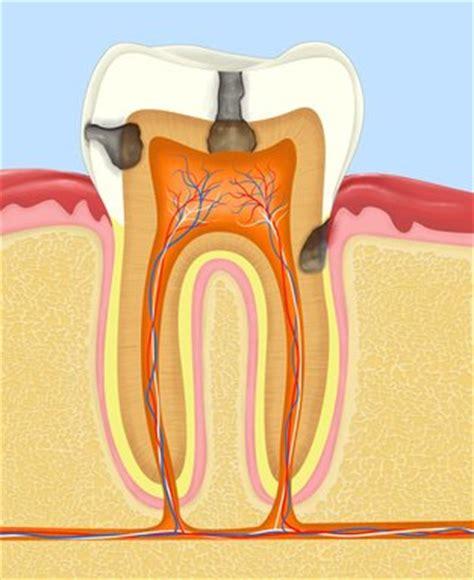 ab wann zahnspange kariesbehandlung schmerzfrei f 252 r kinder und erwachsene