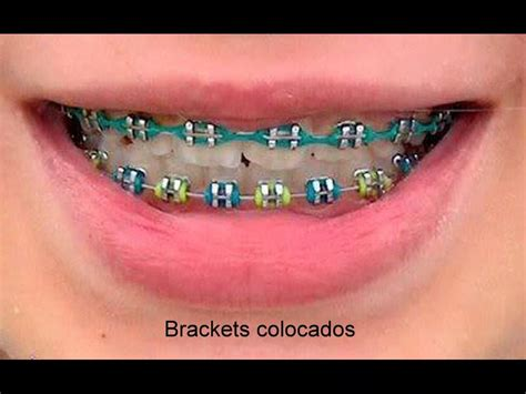 braces colors that make teeth whiter surgery pics part 267