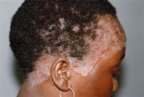 can people with severe alopecia get braids scalp psoriasis and natural hair natural sisters south