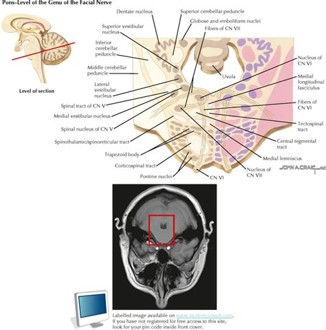 brain stem cross section brain stem and cerebellum neupsy key