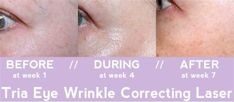 tria beauty laser before and after pictures tria age defying eye wrinkle correcting laser review