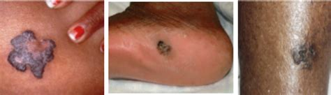skin cancer color skin cancer in of color american academy of