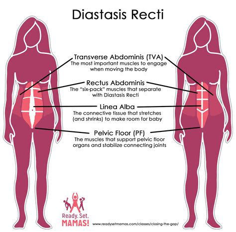 diastasis recti c section pregnancy prenatal and postnatal pilates education