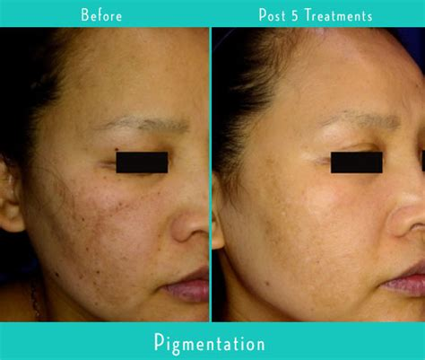 laser skin rejuvenation evolvmd laser tattoo removal