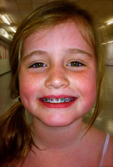 with braces mccanless clare pennington 187 2011 187 february