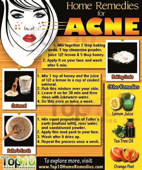 home remedies for acne top 10 home remedies