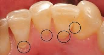 teeth cleaning at home clean plaque and tooth decay using only one ingredient