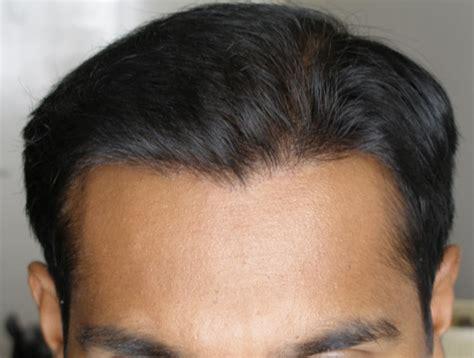 hair loss hair transplant and hair restoration advice image