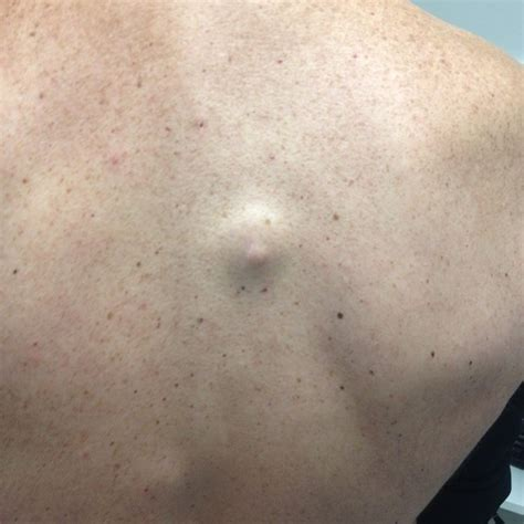 cyst on cysts dermboard