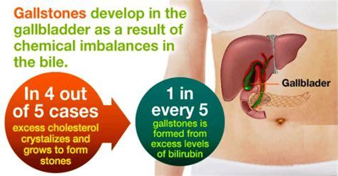 gallstones healthwise medical information on emedicinehealth gallstones causes symptoms treatment emedicinehealth