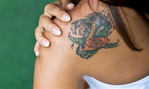 fade away tattoo removal fade away laser removal in minneapolis mn groupon