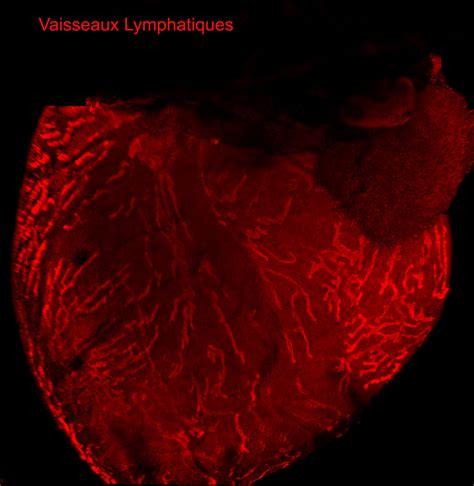 infiammazione vasi linfatici il sistema linfatico pu 242 salvare il cuore