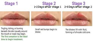 How To Treat A Cold Sore On The Lip by Cold Sore Stages Pictures Timeline Early Contagious
