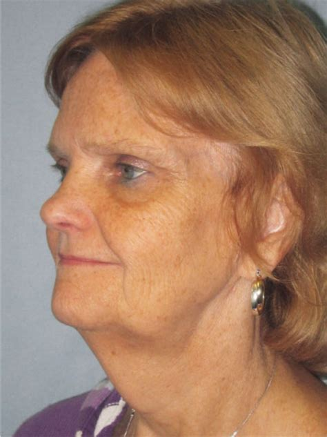 face of 56 year old endoscopic brow lift upper and lower eyelid lifts short