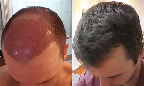 hair transplant month by month hair transplant bangkok forum om hair