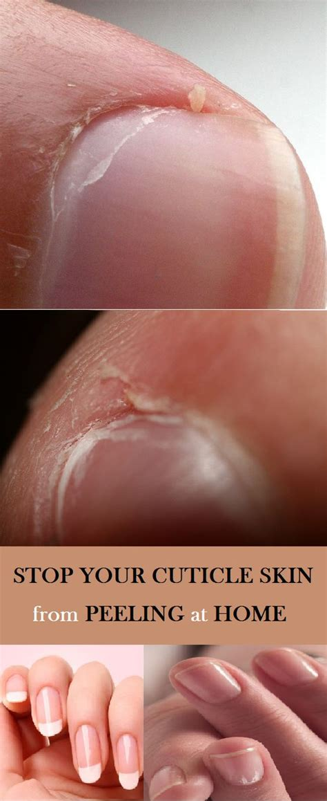 finger tattoo peeling stop your cuticle skin from peeling at home hair and