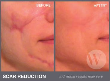 best treatment for surgical scars scar removal luxe laser center