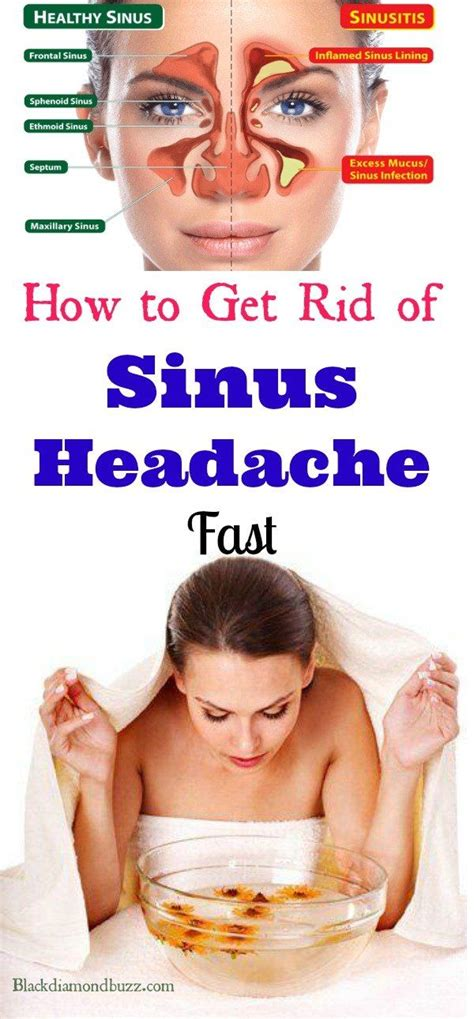 How To Get Rid Of A Detox Headache Naturally 2385 best promote your blogs images on