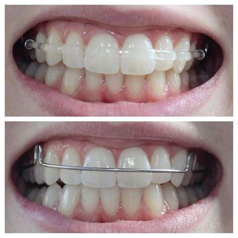 Acrylic Retainer orthodontic retention peninsula orthodontics newport news va