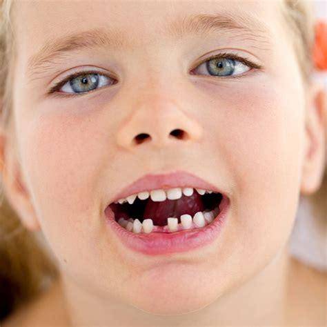 losing teeth when do start losing baby teeth molson park dental