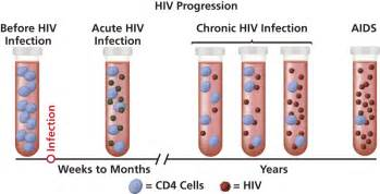 The stages of hiv infection understanding hiv aids aidsinfo