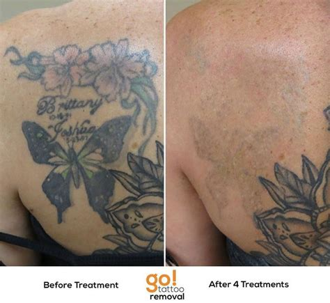 picosure tattoo removal process 840 best tattoo removal in progress images on pinterest