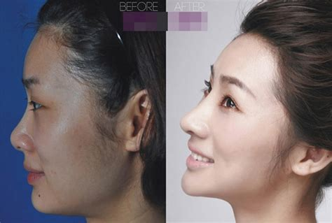perms after surgery 19 photos of women before and after plastic surgery