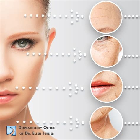 do tanning beds help acne 29 best images about medical skin care on pinterest skin