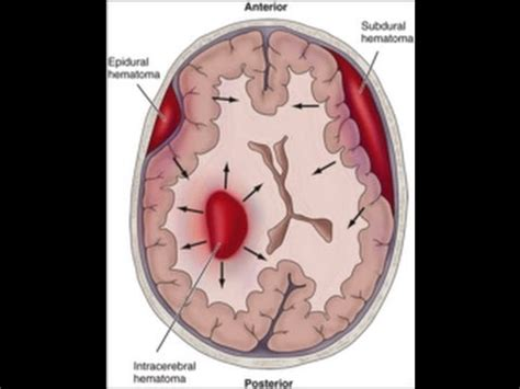 stay a brain bleed a in the balance a story books intracranial bleeding part 2
