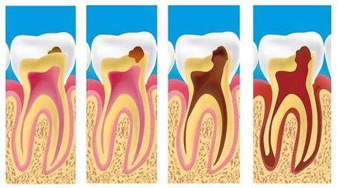 obat sakit gigi august 2014 health and lifestyle