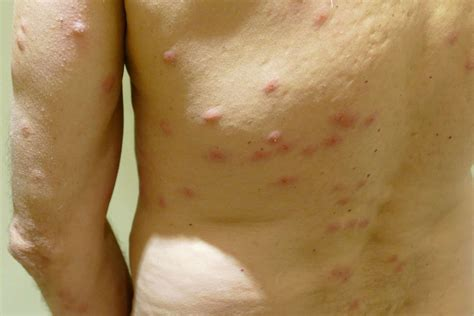 bed bugs treatment on skin bed bug rash on arm