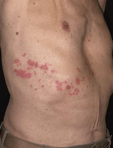 herpes zoster cuero cabelludo doctor a guerra f