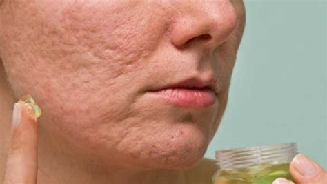 12 Ways To Minimize Your Pores by 10 Home Remedies To Shrink Open Pores Naturally At Home