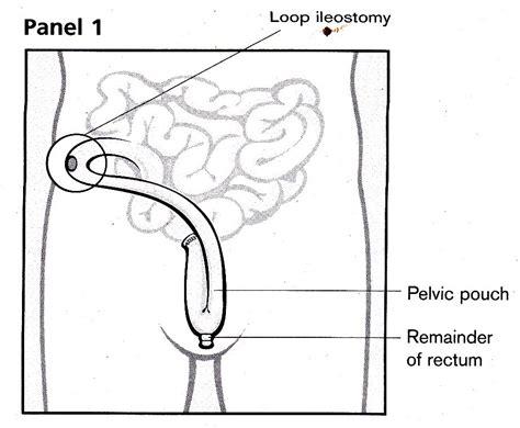 ileostomy diagram 301 moved permanently