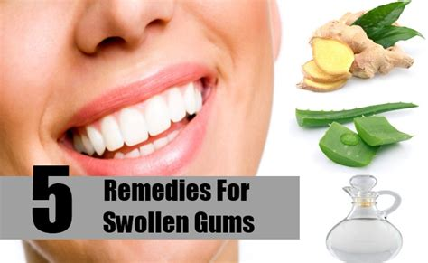 5 remedies for swollen gums treatments cure