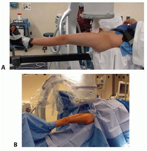 draping a patient trochanteric entry nailing for pediatric femoral shaft