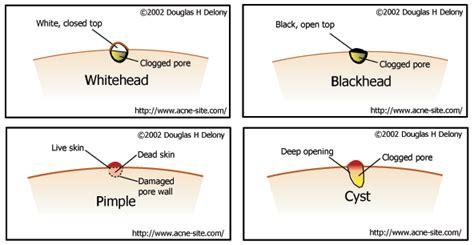 cystic acne diagram acne cyst diagram www pixshark images galleries