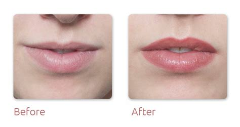 Lip Liner Tattoo Cost Uk | fantasia beauty inverness semi permanent make up