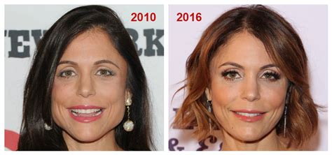 bethenny frankel plastic surgery before and after jaw botox the secret to real housewife bethenny frankel s