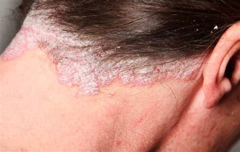 scalp psoriasis the psoriasis and psoriatic arthritis image gallery scalp psoriasis