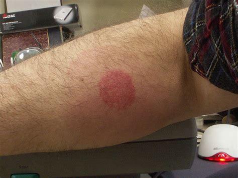 bed bug bite symptoms