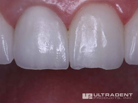 diy dental bonding diy stick teeth veneers diy projects