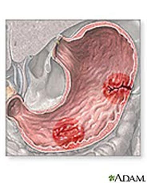Ulcer Blood In Stool by Ulcer Symptom