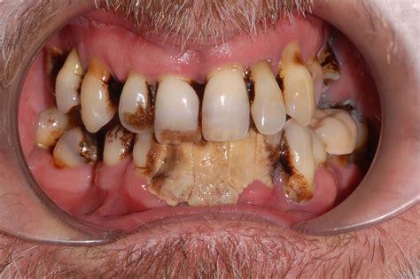 bad teeth the gallery for gt bad teeth