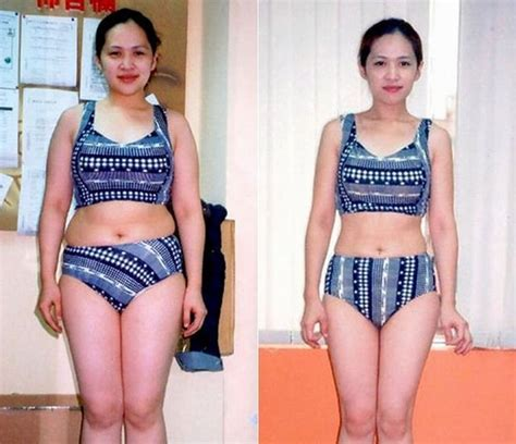 Liposuction Or Weight Loss by 2015 No 1 Quality In China I Lipo Laser Lipolysis Weight